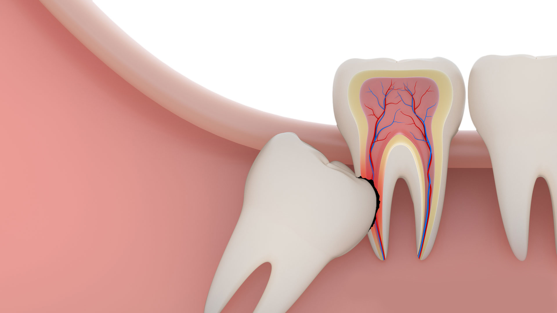 Get Smart about Wisdom Tooth Extraction