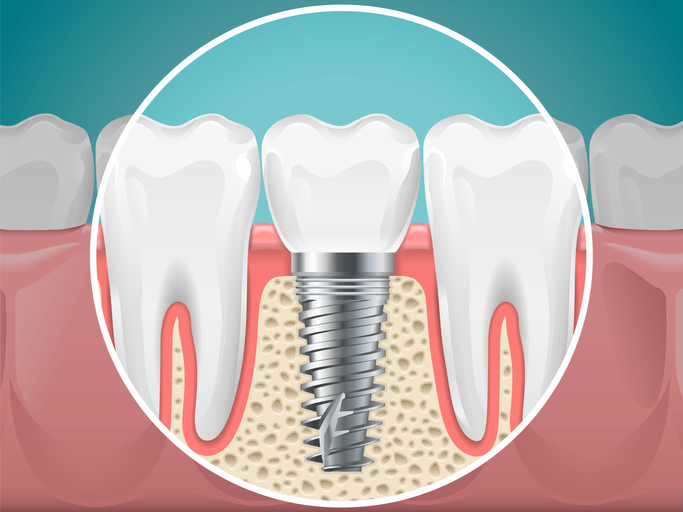 See Why the Top Tooth Replacement Option is a Dental Implant